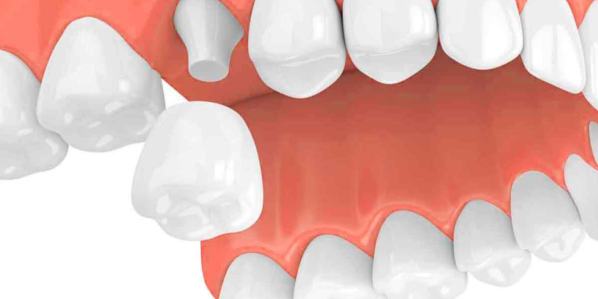 Have You Heard About One-Visit Dental Crown